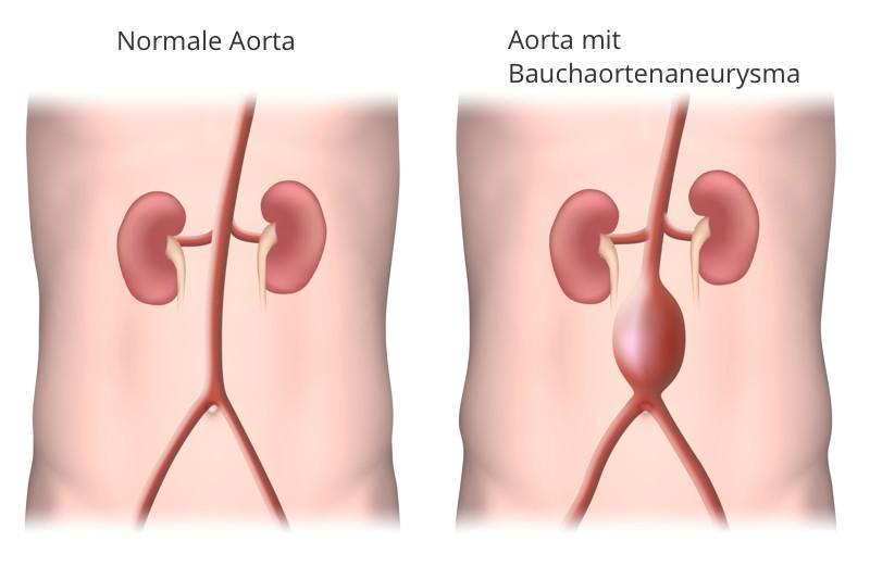 Bauchaortenaneurysma, Abdominelles Aortenaneurysma, Aneurysma der Bauchaorta