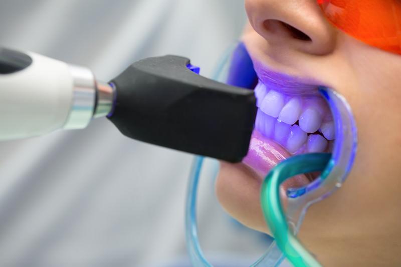 Bleaching, tooth whitening, Zahnaufhellung, Zahnbleaching, Zähne bleichen