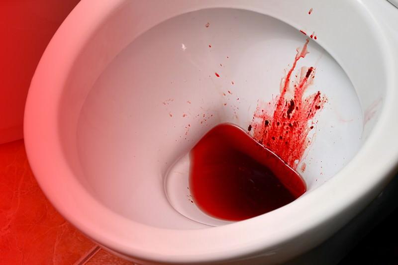Blut Im Stuhl Ursachen Therapie Und Behandlung