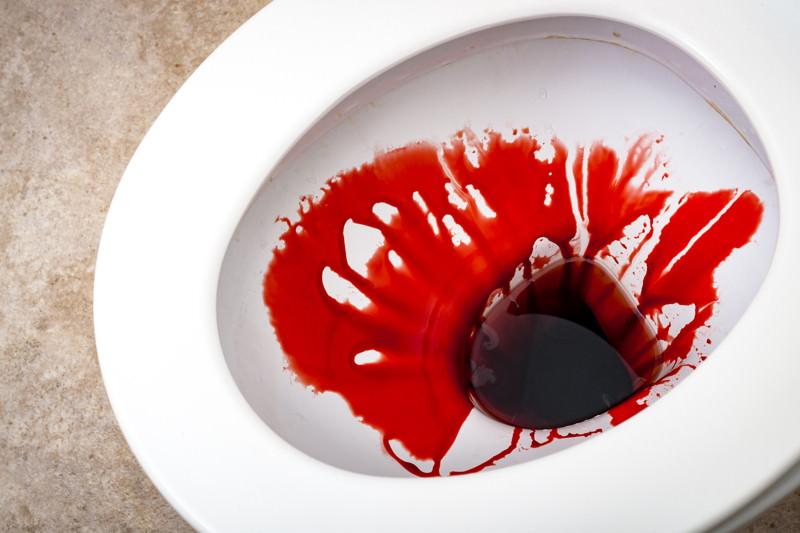Blut im Urin, Hämaturie