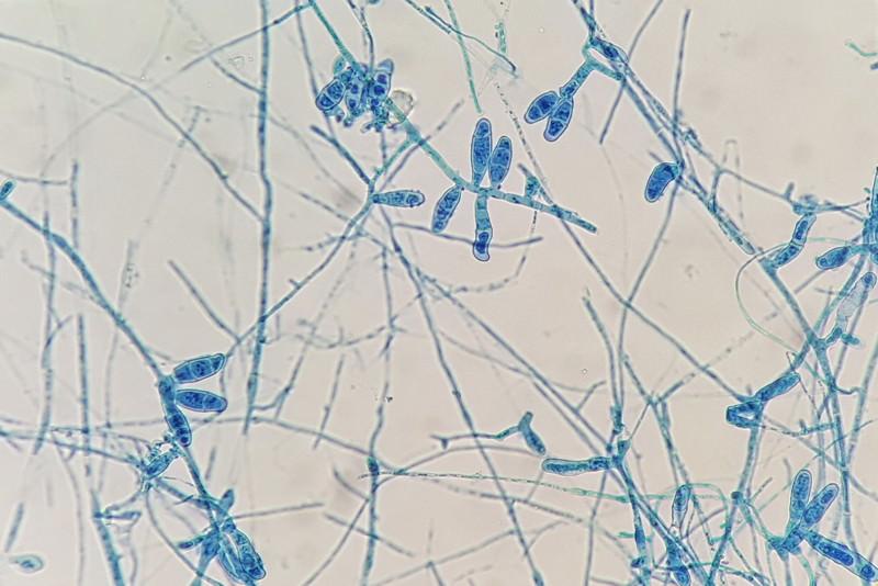 Dermatophyten, Epidermophyton, Fadenpilze, Microsporum, Trichophyton