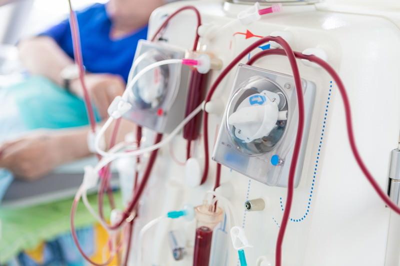 Dialyse, Blutreinigung, Blutwäsche, künstliche Niere, Nierenersatztherapie