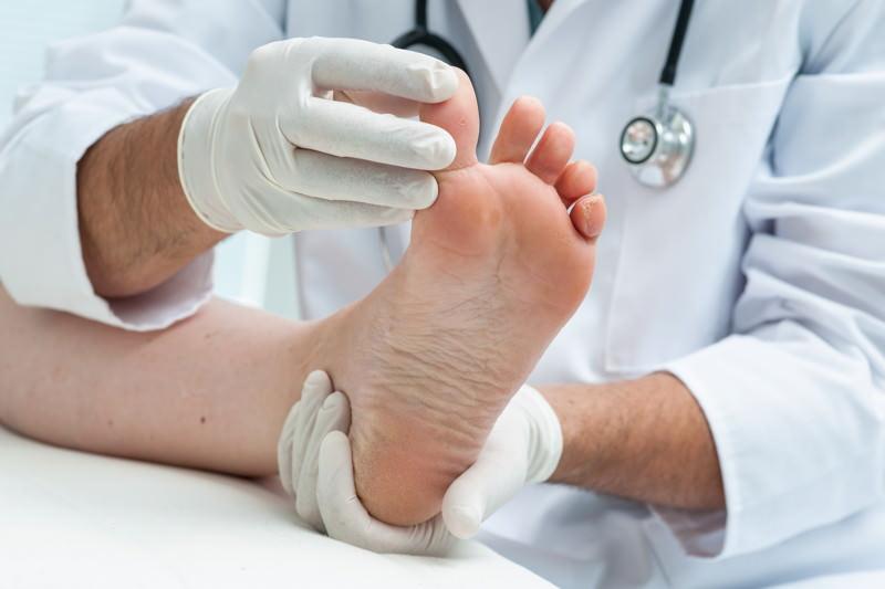 Fußpilz, Dermatophytose, Mykose, Tinea pedis