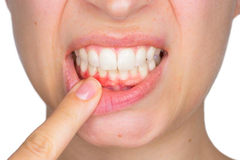 Gingivitis, Zahnfleischentzündung