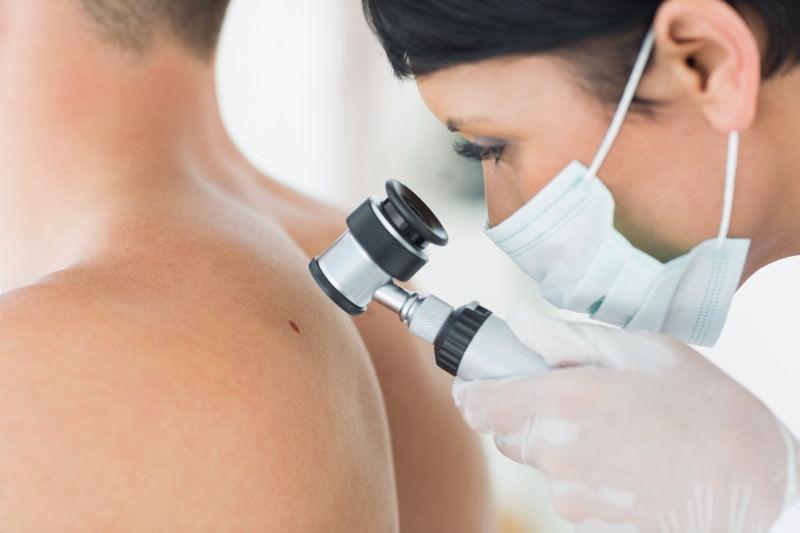 Hautkrebs, Malignes Melanom, Spindelzellkarzinom