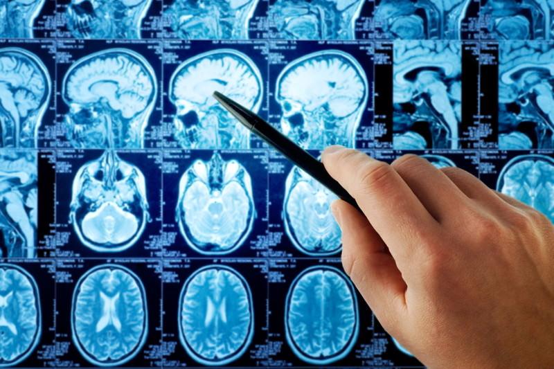 Hirntumor, Gehirntumor, Medulloblastom, Meningeom, Neurinom