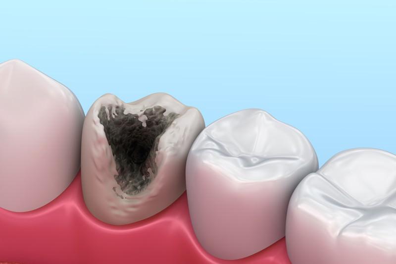 Karies, Caries, Zahnfäule, Zahnfäulnis, Zahnkaries