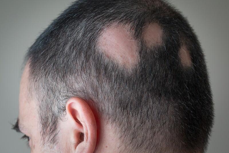 Alopecia areata, Kreisrunder Haarausfall