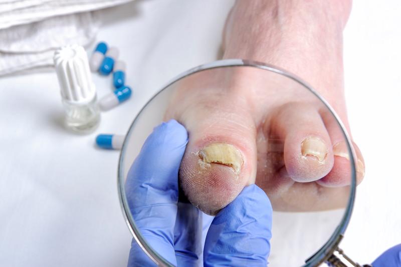 Nagelpilz, Onychomykose, Dermatophyten, Infektion des Nagels, Nagelmykose, Tinea unguium