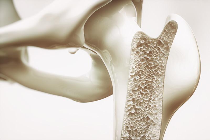 Osteoporose-Mittel