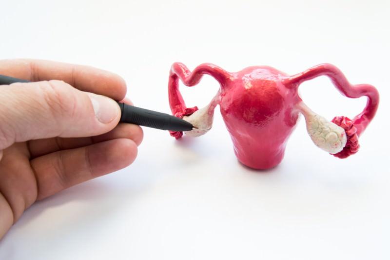 PCO-Syndrom, Polyzystisches Ovarsyndrom, Stein-Leventhal-Syndrom, Syndrom der polyzystischen Ovarien