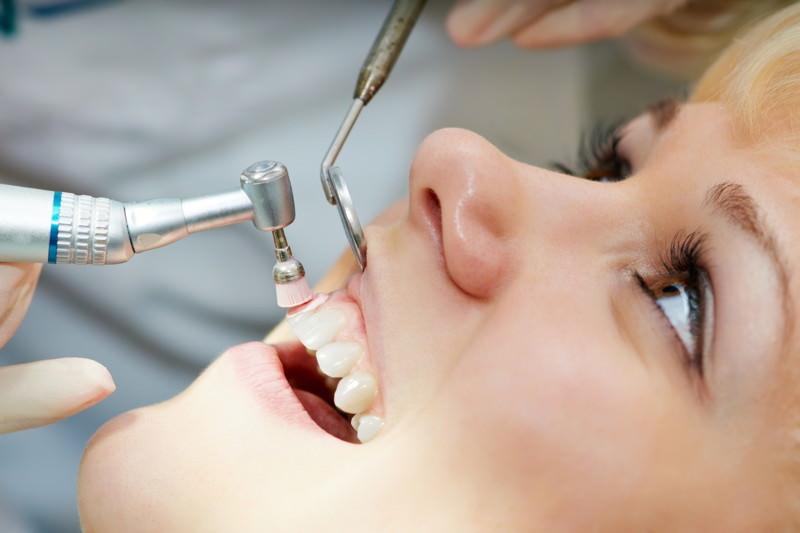 Professionelle Zahnreinigung, PZR