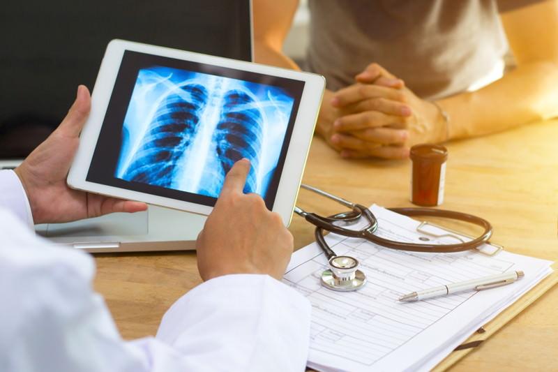 Röntgen, durchleuchten, x-ray