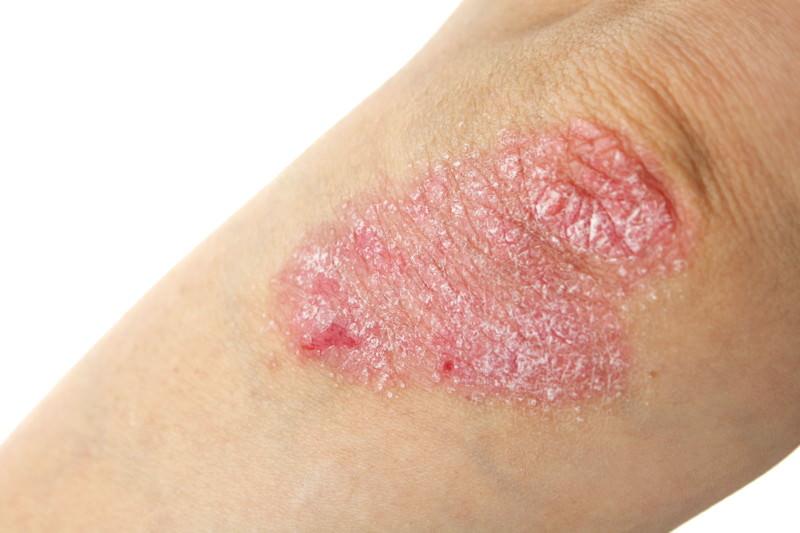 Schuppenflechte, Psoriasis