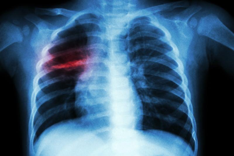 Tuberkulose, Tuberculosis