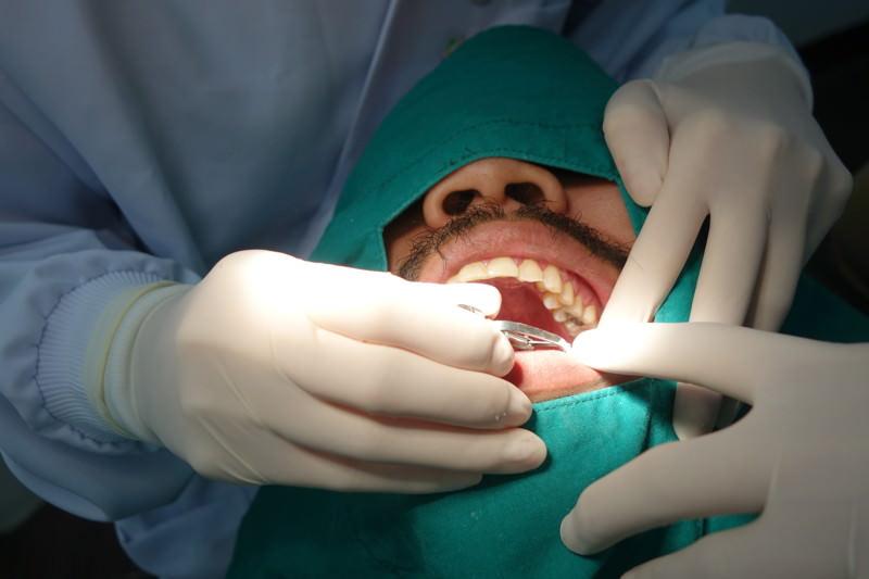 Wurzelbehandlung, Endodontische Behandlung, Wurzelkanalbehandlung